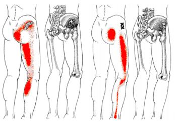 坐骨神経痛とトリガーポイント