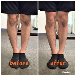 O脚の施術例4